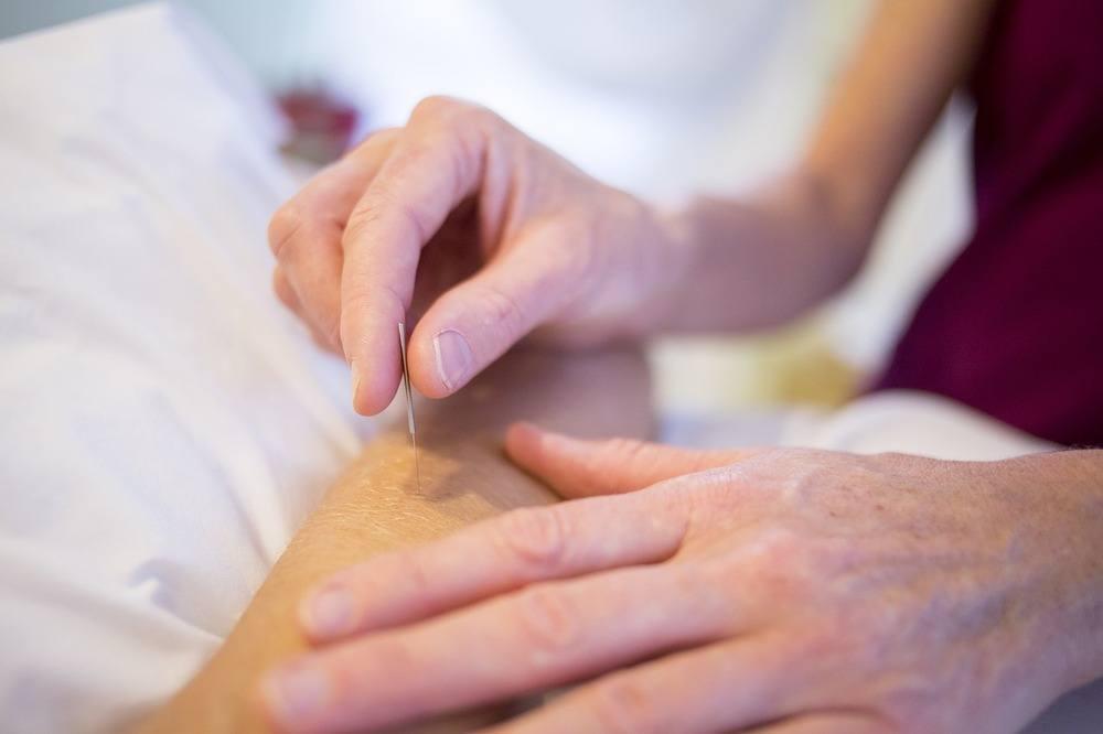 När kan man använda sig av akupunktur